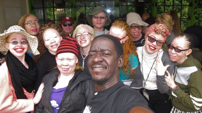 In the shadows of white pat Robert with some youth with albinism in meru kenya