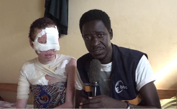 Pat Robert Larubi Interviewing Lilian Nakavuma after undergoing sucessful skin cancer operation
