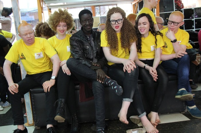 Sharing a moment at the boothcamp with some of the models at the first ever miss Albinism East Africa