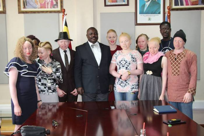 Team of youth with albinism pose for a picture with the deputy speaker of parliament before being flagged off for Mr and Miss Albinism East Africa.